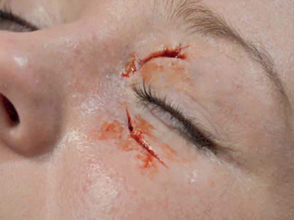 Geschwollenes Auge (links) SB3