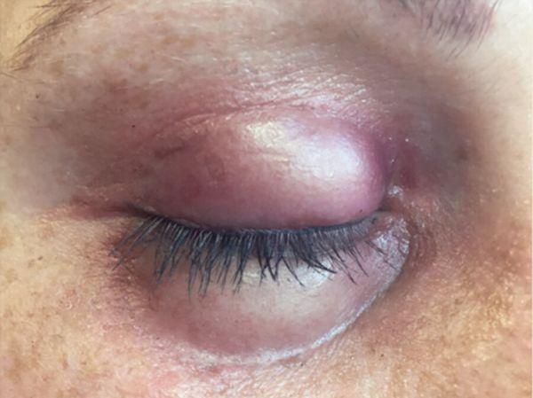 Geschwollenes Auge (rechts) SB5