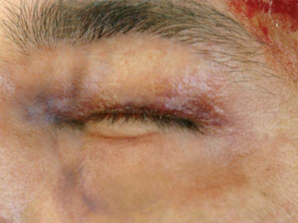 Geschwollenes Auge (links) SB2