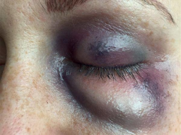Geschwollenes Auge (links) SB6
