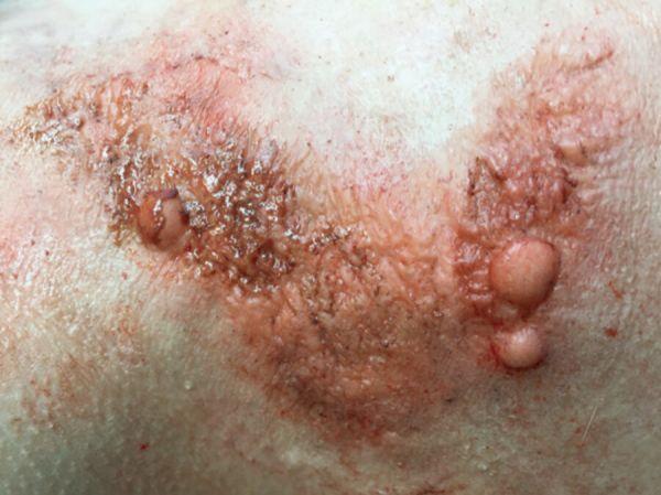 Hautkrankheit SD8