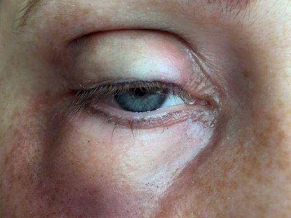 Geschwollenes Auge (rechts) SB4