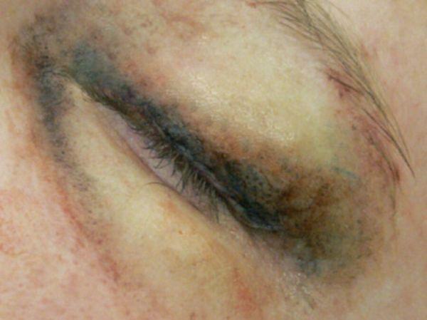 Geschwollenes Auge (links) SB1