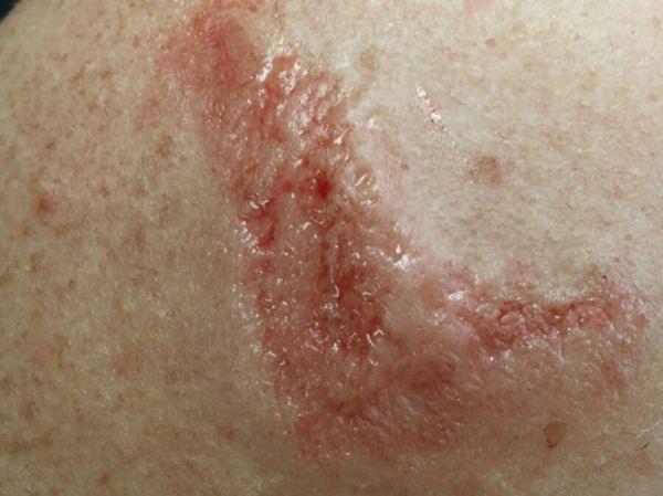 Hautkrankheit SD11